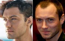 Hair Loss Treatment India