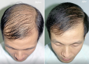 hair-loss-solutions-300x217