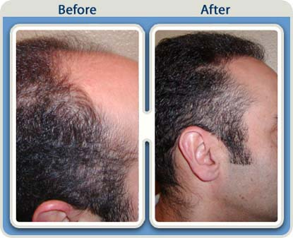 hair-replacement-surgery-India
