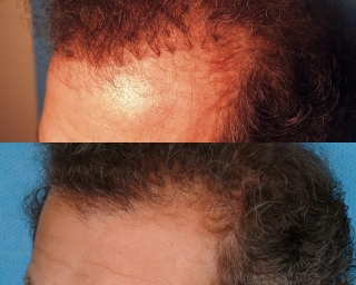 hairline refinement1_320