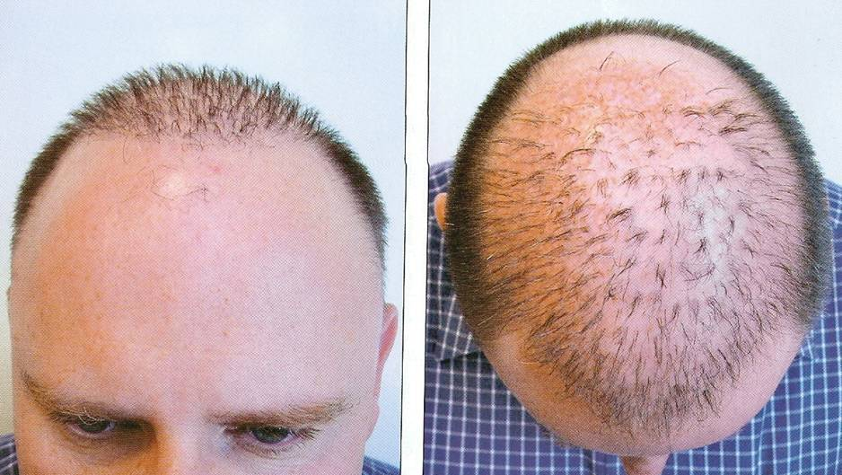 Hair transplant in india cost