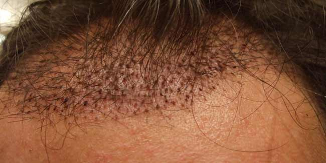 Reduce-Swelling-After-Hair-Transplant-th