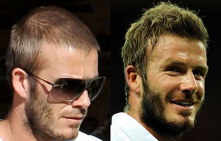 David Beckham Hair Ttransplant