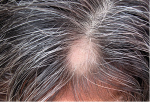 drug induced hair loss