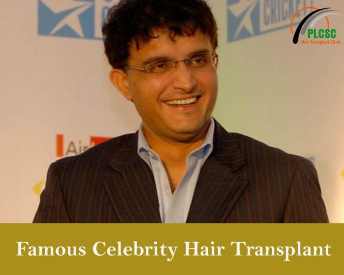 hair transplant in kolkata