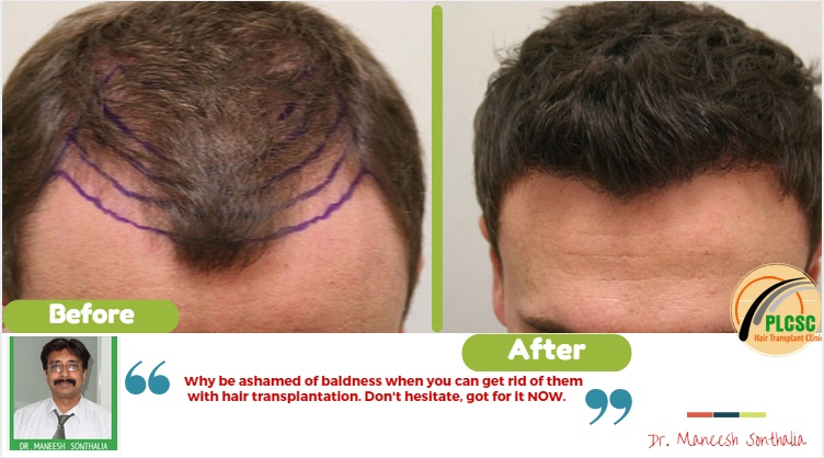 10 Reasons Why Beard To Scalp Hair Transplant Is On The Rise Hair