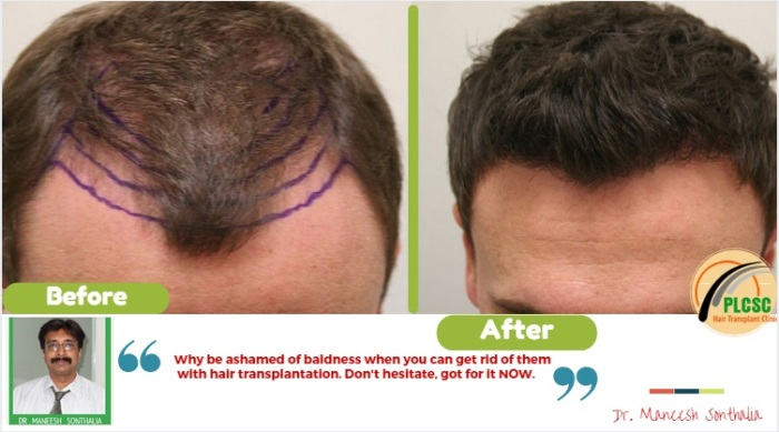 hair transplant in kolkata from beard