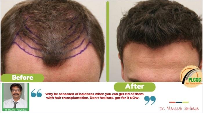 hair transplant in kolkata from beard