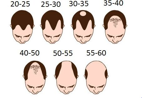 Premature Hair Loss